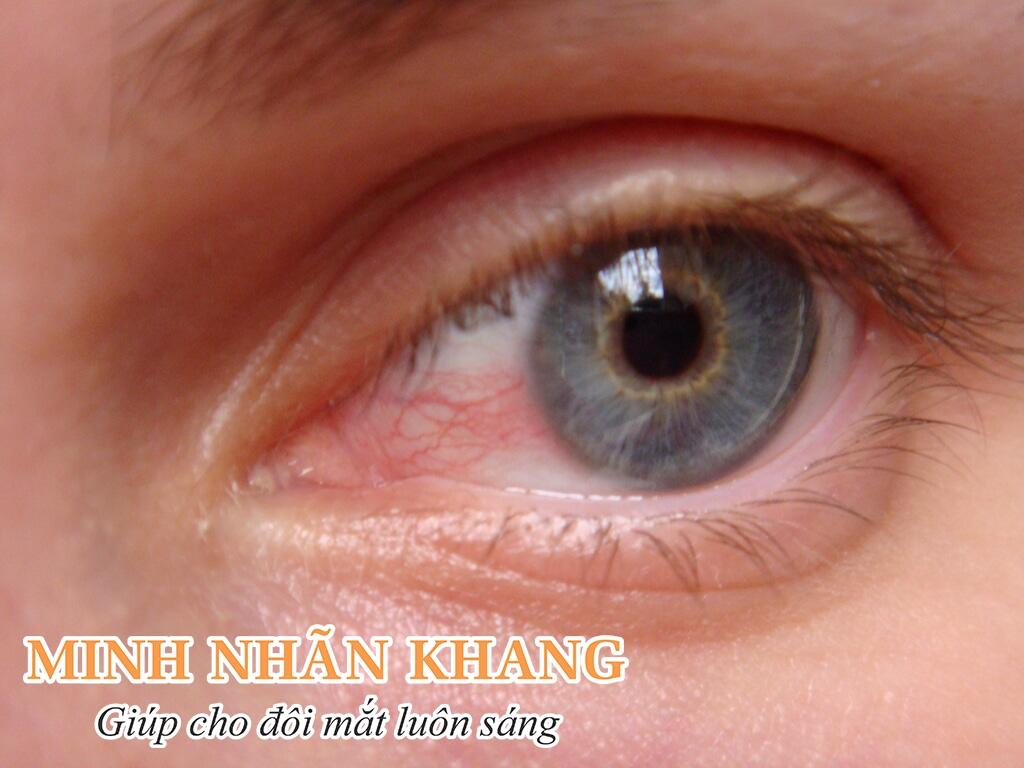 Mắt bị đau, rát là những dấu hiệu thường gặp của bệnh khô mắt